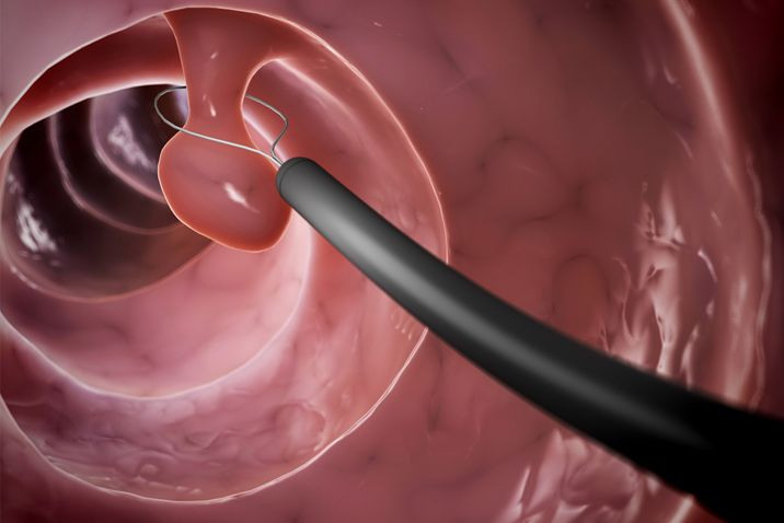 removing colorectal cancer polyp using colonoscopy