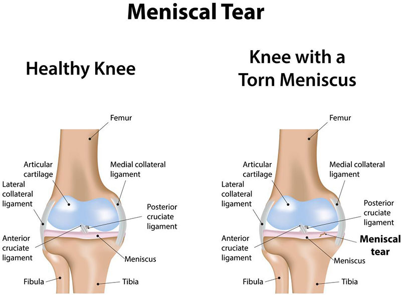 Knee Injuries and Treatment | Gleneagles Hospital
