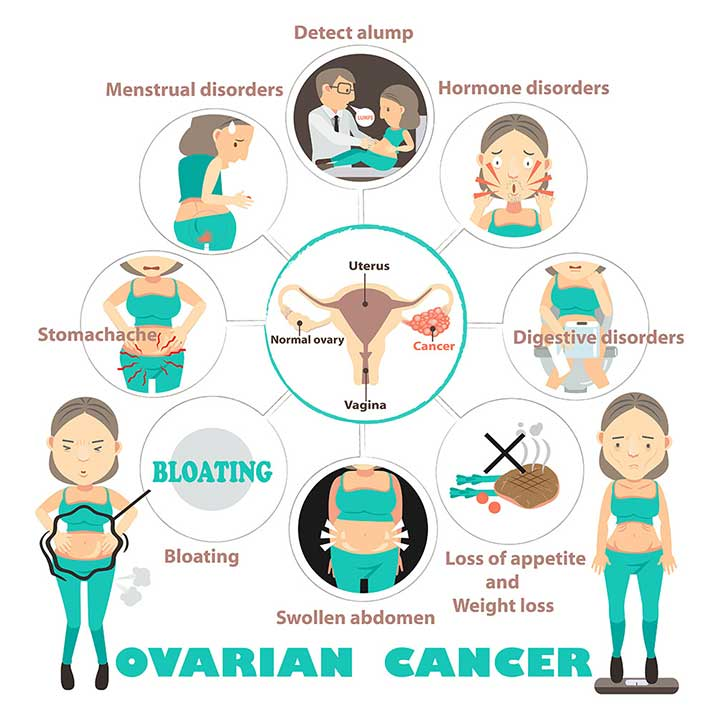 Ovarian Cancer Symptoms Diagnosis Treatments