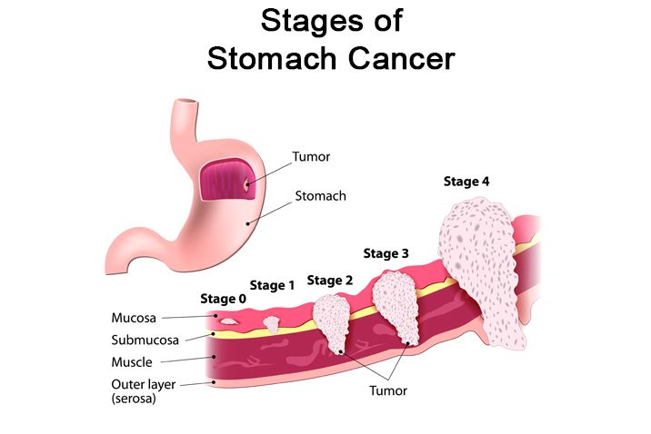 different stages of stomach cancer