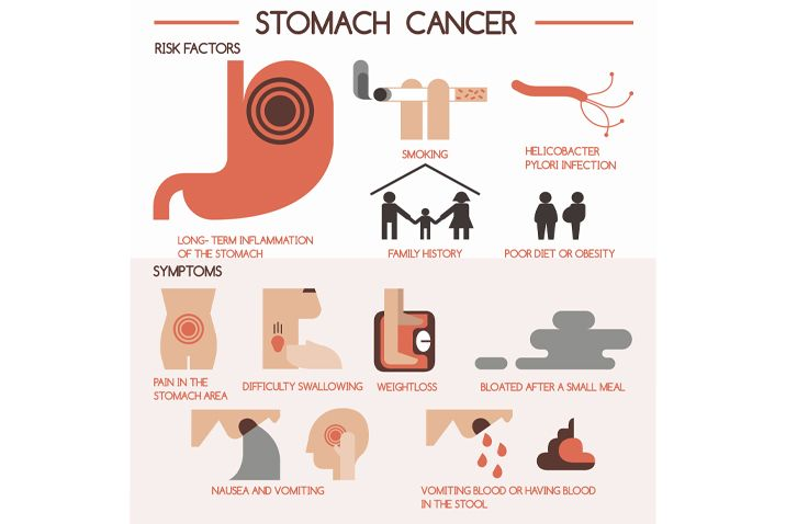 what is symptoms of gastric cancer