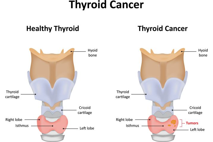 Thyroid Cancer Facts Symptoms Diagnosis Treatment Gleneagles