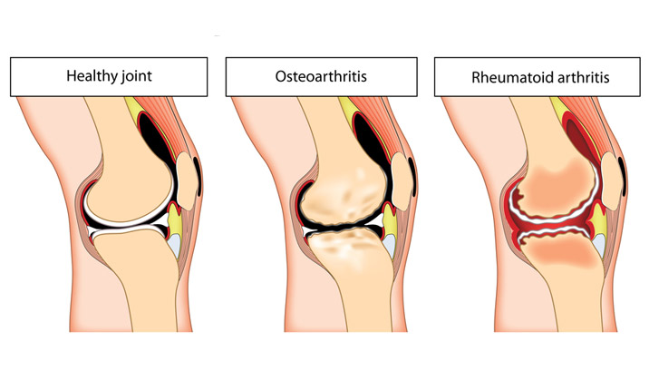 Midlife Pain In The Knees Health Plus
