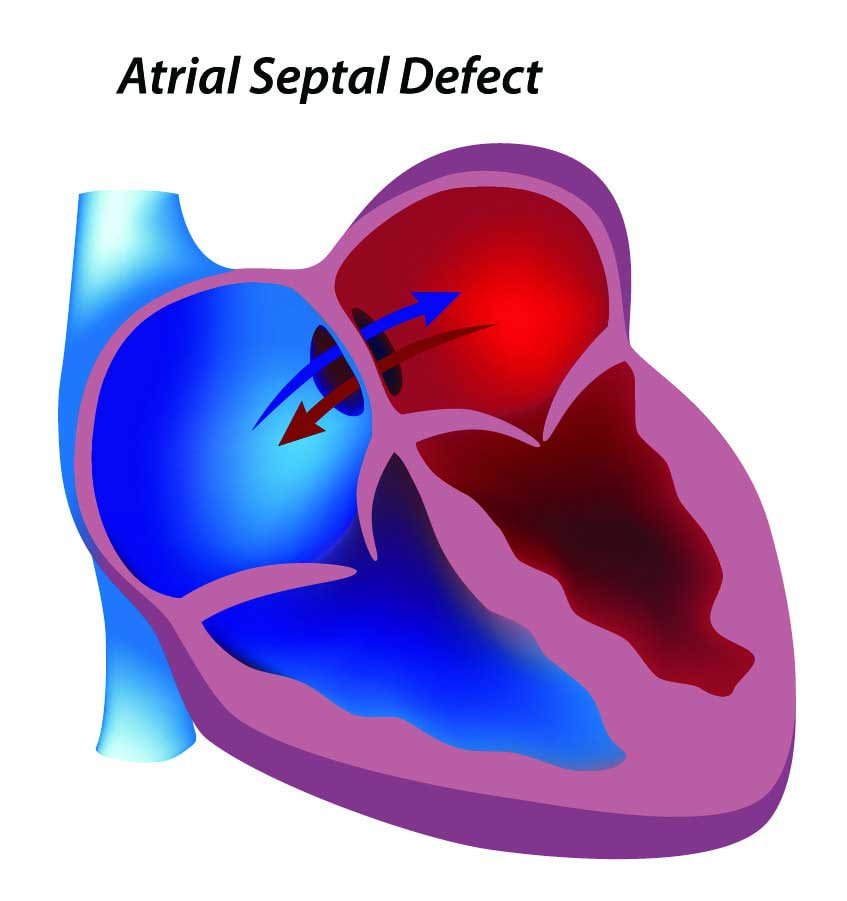 atrial-septal-defect-expand_v2