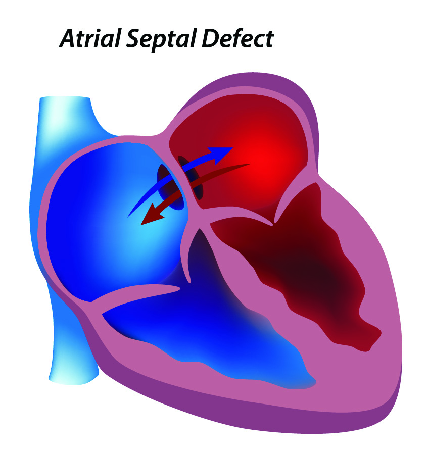 atrial-septal-defect