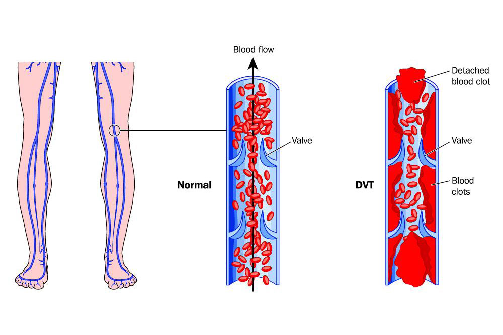 infographic comparing healthy veins and veins with deep vein thrombosis