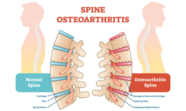 Degenerative spine complications arthritis