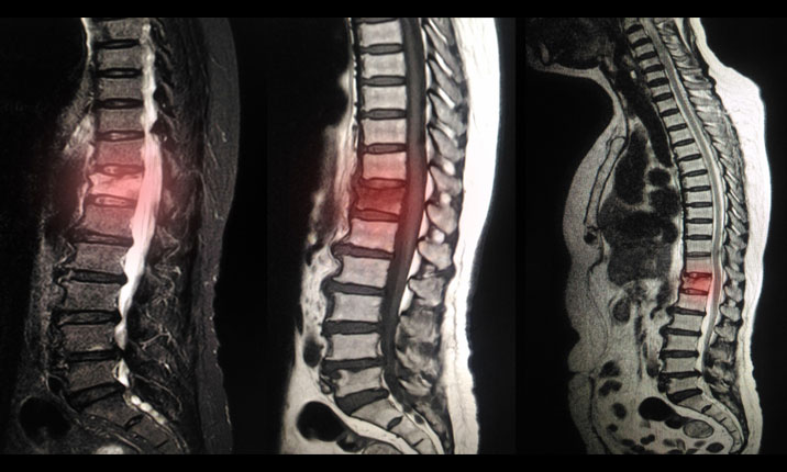 Degenerative spine diagnosis scan