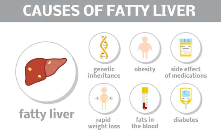 6 Myths About Fatty Liver Health Plus