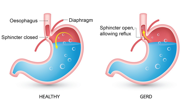 Gastric problems causing chest pain - GERD