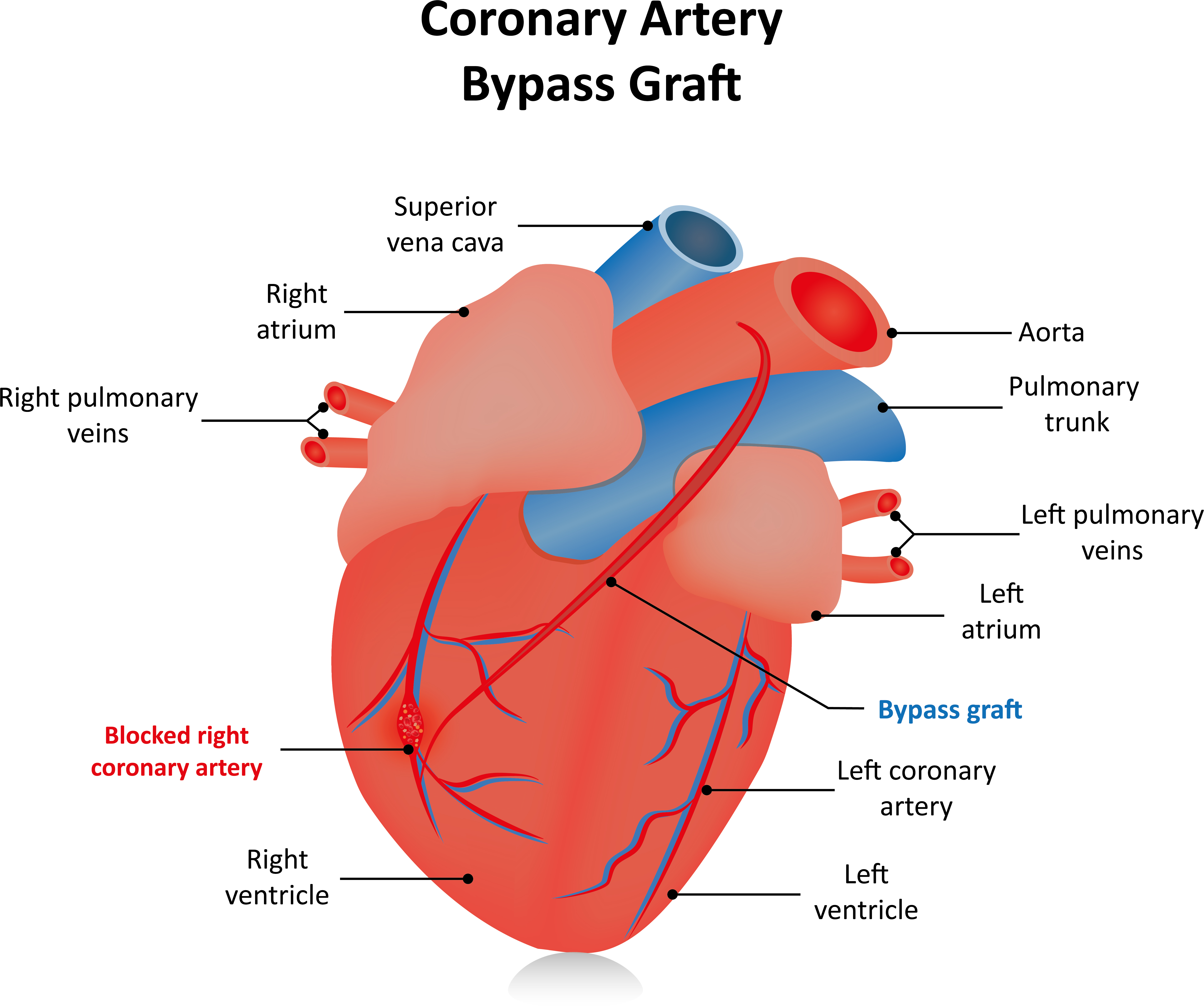 Treatment heart bypass ccuart Choice Image