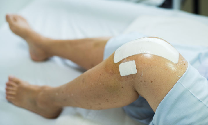 Joint replacement knee