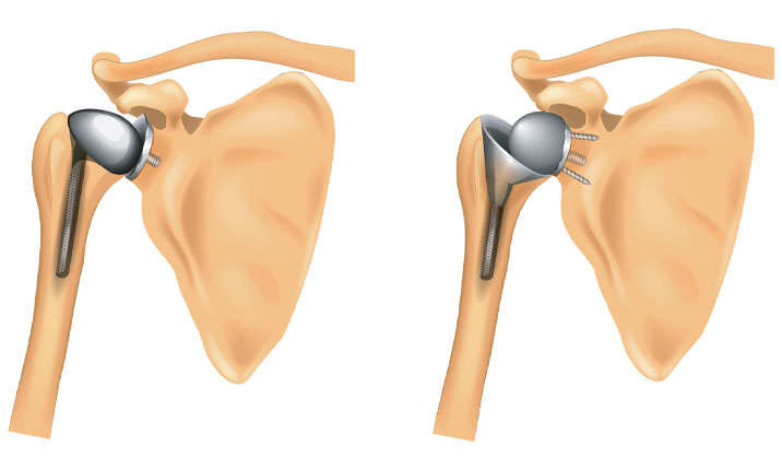 Joint replacement shoulder