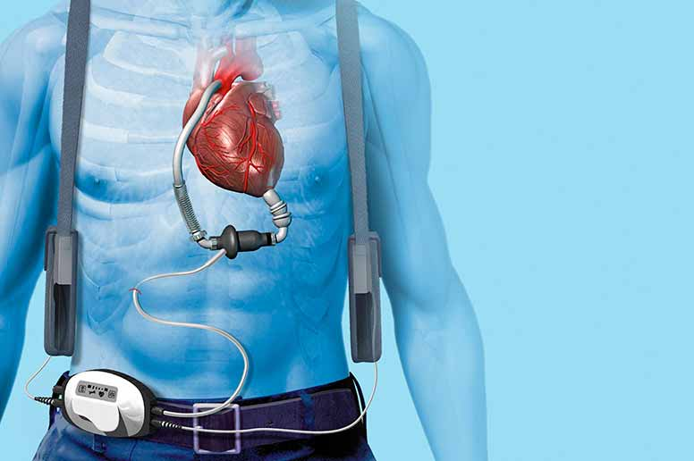 Mount Elizabeth, Left Ventricular Assist Device (LVAD)