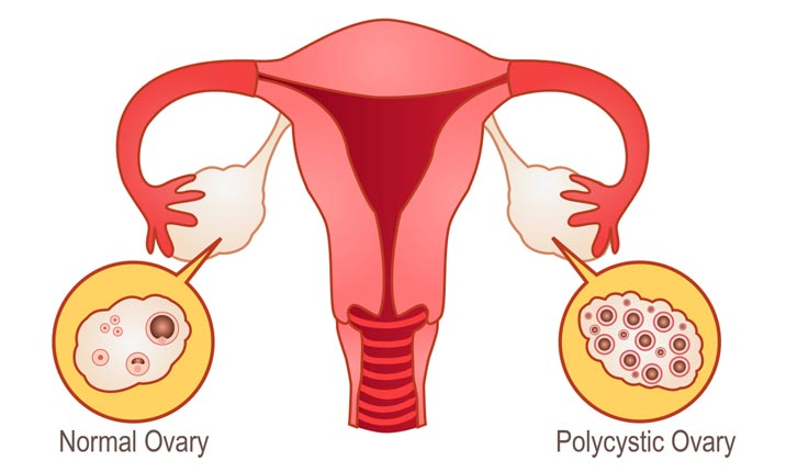 Polycystic ovary syndrome
