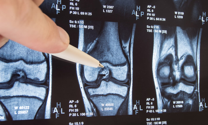 Treating cartilage damage - Surgery