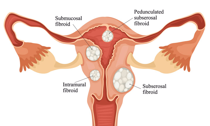 Know The Difference Between Cysts And Fibroids Health Plus