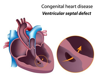 ventricular-septal-defect
